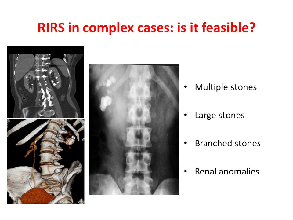 RIRS in complex cases: is it feasible Multiple stones Large stones Branched stones Renal anomalies
