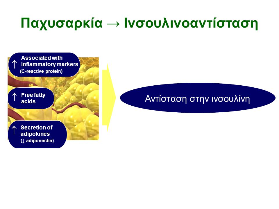Παχυσαρκία → Iνσουλινοαντίσταση Associated with inflammatory markers (C-reactive protein)  Free fatty acids  Secretion of adipokines ( ↓ adiponectin)  Αντίσταση στην ινσουλίνη Mechanisms linking obesity to insulin resistance and type 2 diabetes Kahn et al, Nature, Dec 2006