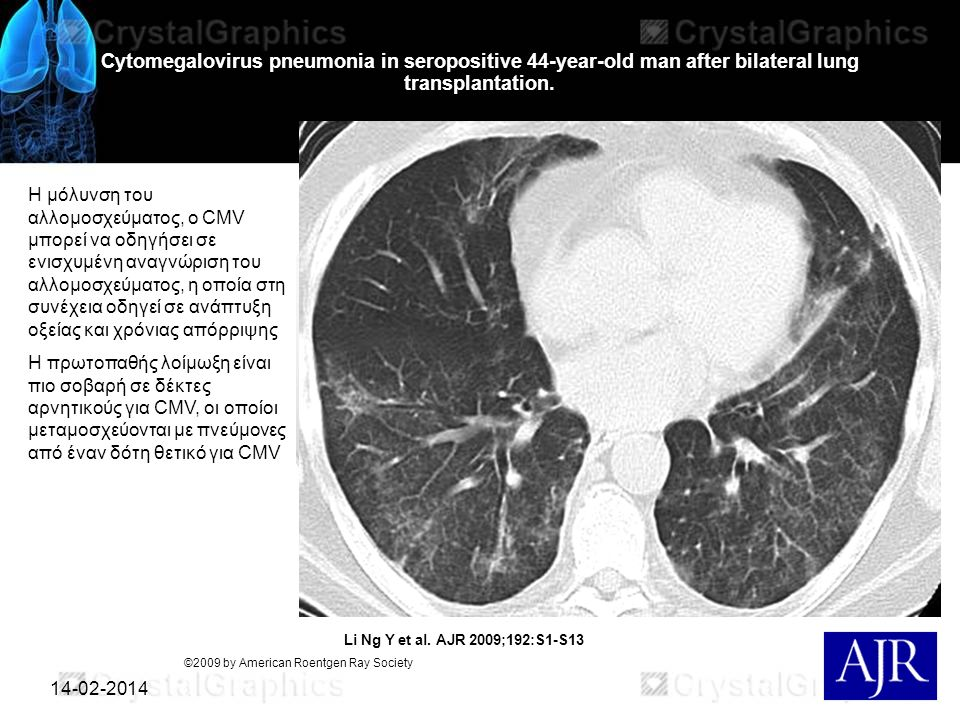Cytomegalovirus pneumonia in seropositive 44-year-old man after bilateral lung transplantation.