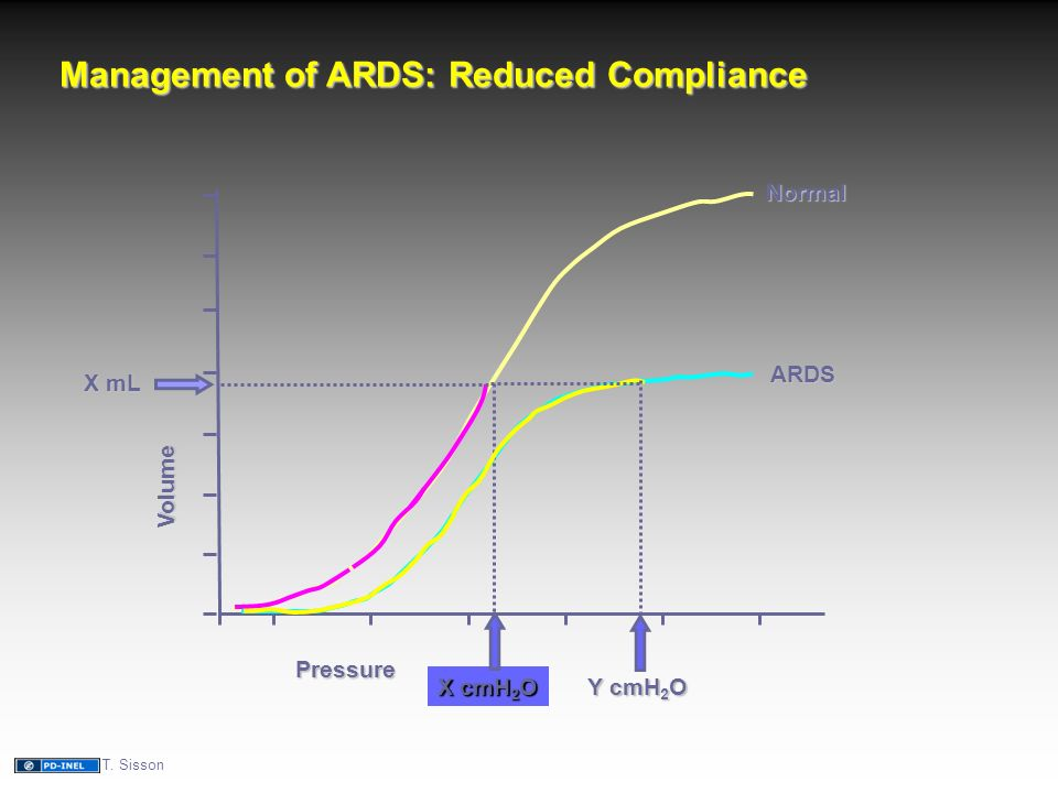 Pressure Volume Normal ARDS Management of ARDS: Reduced Compliance X mL X cmH 2 O Y cmH 2 O T.